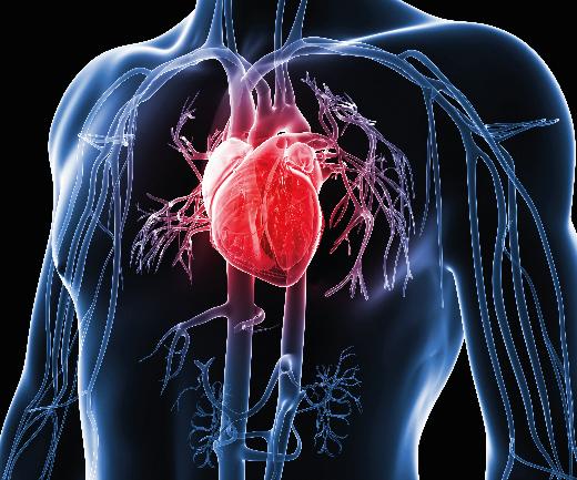 What Is Heart Disease St Andrews War Memorial Hospital Brisbane